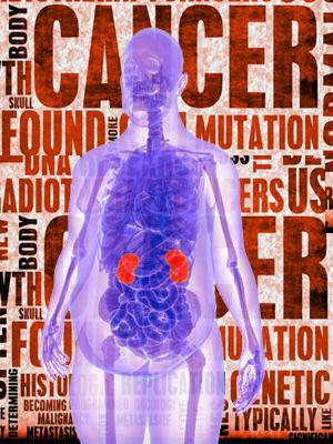 Grasas y cáncer - Quilo  de Ciencia podcast - Cienciaes.com
