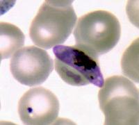 El disfraz de la malaria - Quilo de Ciencia podcast - Cienciaes.com