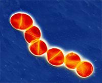 Una cálida evasión - Pudcast Quilo de Ciencia - Cienciaes.com