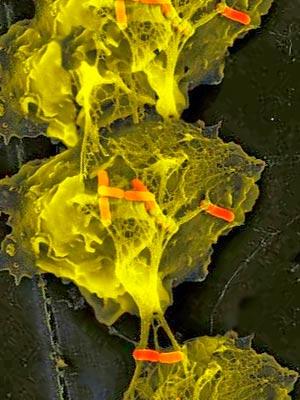 Bacterias durmientes - Quilo de Ciencia podcast - Cienciaes.com