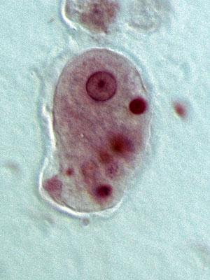 Mordisqueos celulares - Quilo de Ciencia podcast - Cienciaes.com
