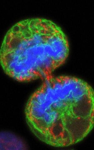 Células madre y cáncer - Cierta Ciencia podcast - CienciaEs-.com