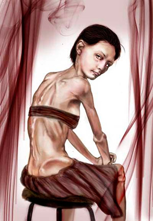 Anorexia - Quilo de Ciencia podcast - CienciaEs.com