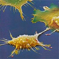 Magnetismo contra el cáncer - Quilo de Ciencia Podcast - CienciaEs.com