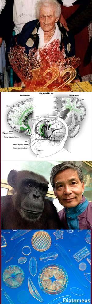 Edad límite. Viajes neuronales. Observados por los monos. Diatomeas. - Ciencia Fresca - CienciaEs.com