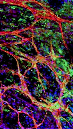 Microambiente tumoral - Eva Galan - CienciaEs.com