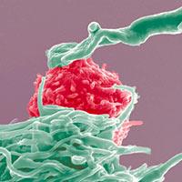 Más cerca de la inmunoterapia contra el cáncer - Quilo de Ciencia podcast - CienciaEs.com