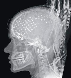 Estamos cableados para las adicciones - Cierta ciencia podcast - CienciaEs.com