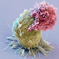 Inmunoterapia y cancer - Quilo de Ciencia - CienciaEs.com