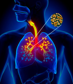 Neuronas e infecciones pulmonares - Quilo de Ciencia podcast - CienciaEs.com