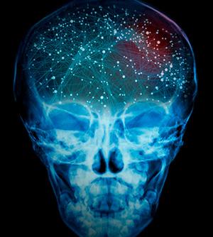 Entrando al cerebro psicópata - Cierta Ciencia podcast - CienciaEs.com