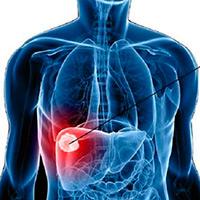 Oncogén y el pie de atleta- Quilo de Ciencia - CienciaEs.com