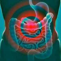 La inflamación gastrointestinal - Cierta Ciencia podcast- CienciaEs.com