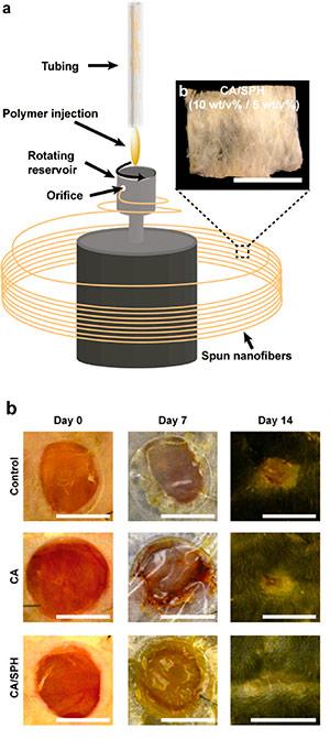 Vendajes de nanotecnología - Cierta Ciencia podcst - CienciaEs.com