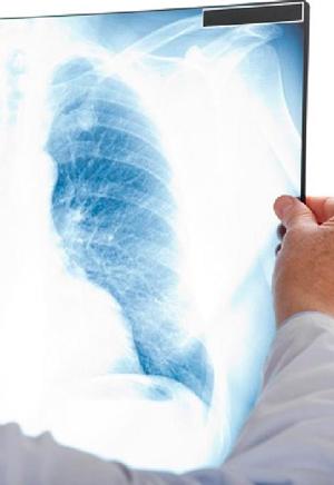 Avances en el diagnóstico del cáncer - Quilo de Ciencia podcast - CienciaEs.com