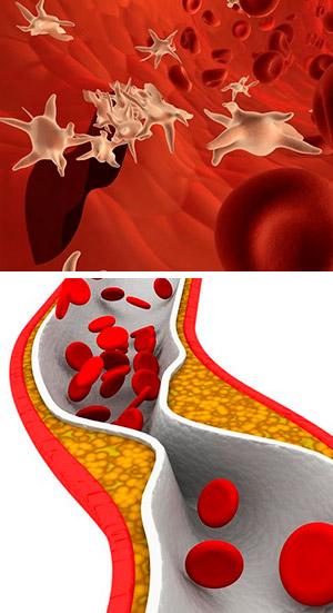 Plaquetas y aterosclerosis - Quilo de Ciencia Podcast - CienciaEs.com