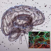 ¿Es El Parkinson una enfermedad autoinmune? _ Quilo de Ciencia podcast - CienciaEs.com