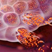 Virus oncolíticos - Quilo de Ciencia podcast - Cienciaes.com