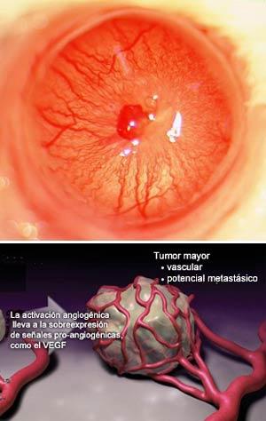Cáncer y angiogénesis - Quilo de ciencia podcast