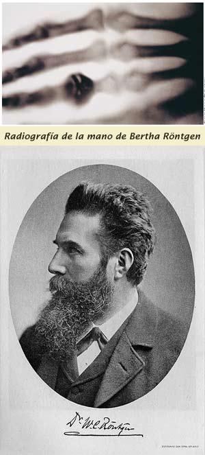 Radiografía de Bertha Röntgen