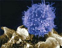 Linfocitos antitumorales de diseño - Quilo de Ciencia - cienciaes.com